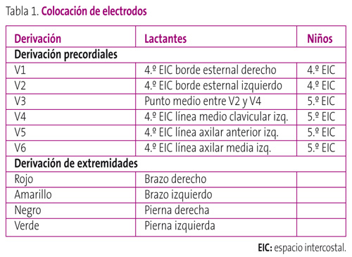 Tabla 1. Colocación de electrodos